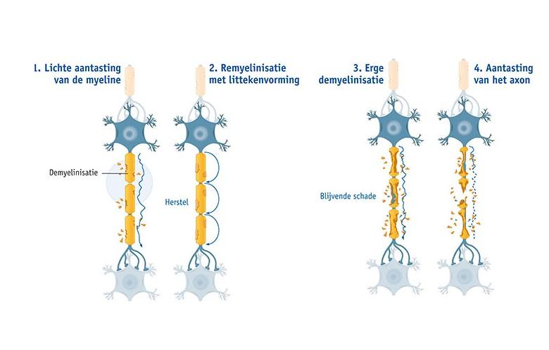 Afbeeldingsresultaat voor remyelinisatie